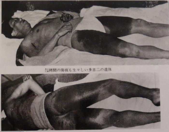 小林多喜二の遺体 拷問の痕が生々しい